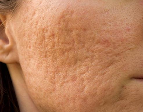scars treatment