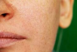 open pores on face