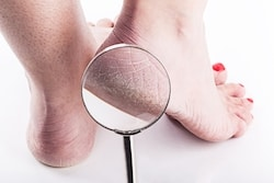 Cracked heels are uncomfortable and painful.
